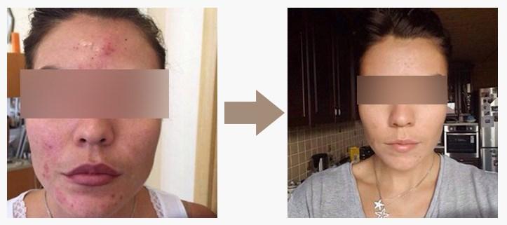 Результат применения