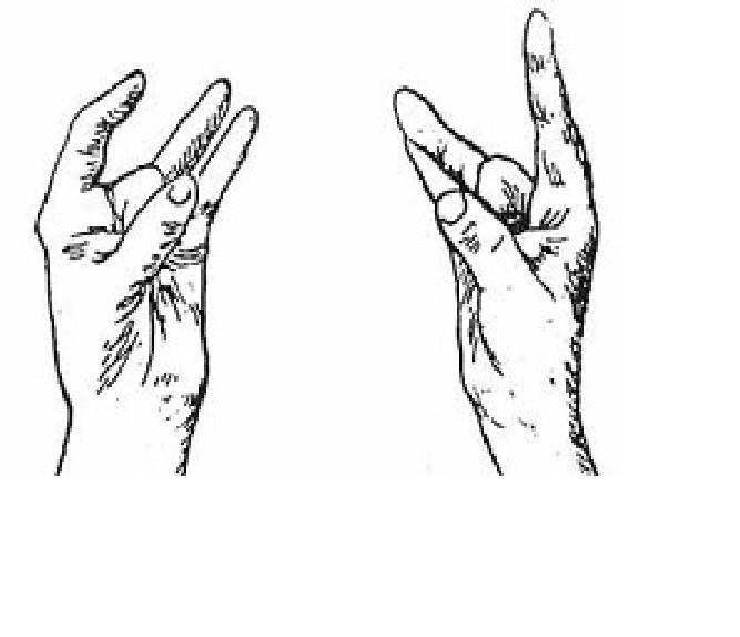 3. При ушных заболеваниях и осложнении слуха Способность пальцев, медицина